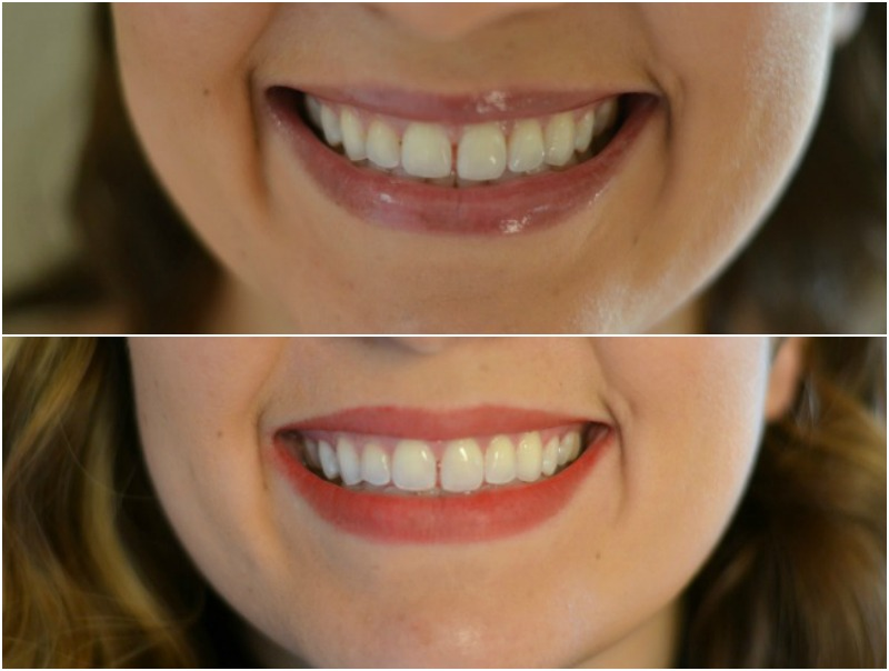 Crest 3d White Strips Before And After Review By Lauren M